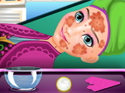 Play Anna Skin Treatment