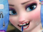 Play Elsa Dentist Appointment
