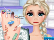 Play Elsa Foot Doctor