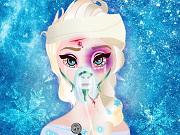 Play Elsa Head Injury