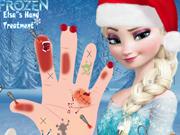 Play Elsa's Hand Treatment