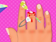 Play Finger Surgery