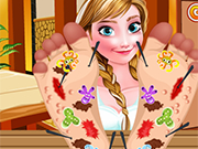 Play Frozen Anna Foot Doctor