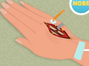 Play Hand Surgery