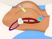 股関節手術