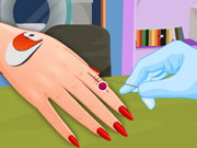 Play Manicure After Injury